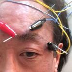 I've been taking a variety of acupuncture treatments for post herpetic neuralgia pain, including the more drastic 3-stim treatment.